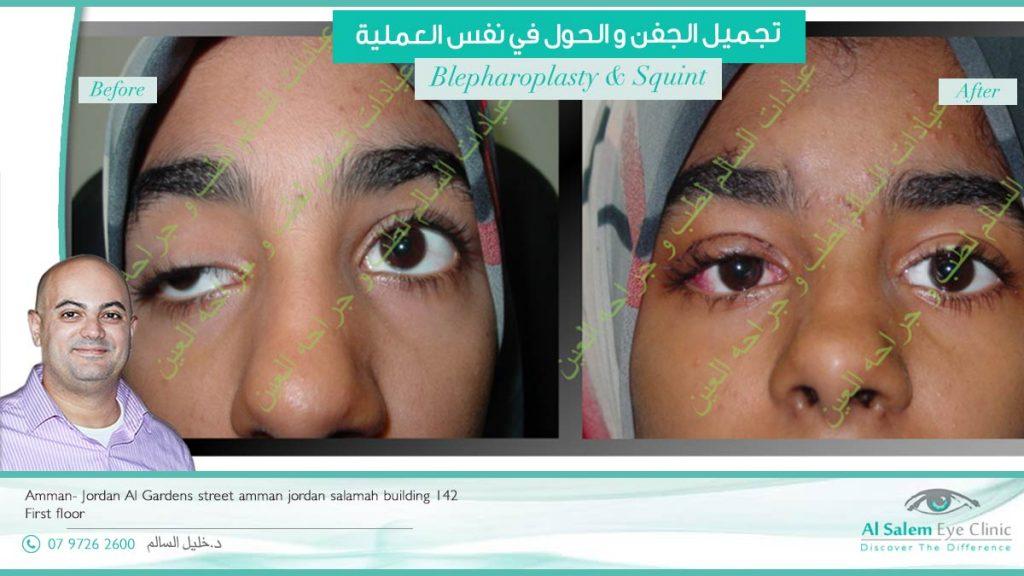 عملية تجميل العيون و الحول في نفس العملية، عيادات السالم لطب و جراحة العين رأب الجفن