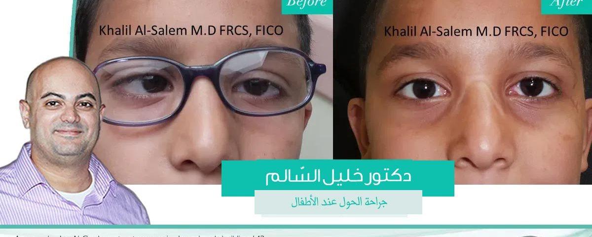 علاج الحول في الأردن عمليات الحول في الأردن