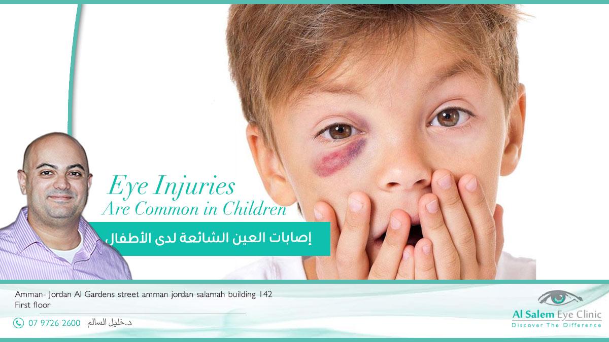 -العين-الشائعة-لدى-الأطفال