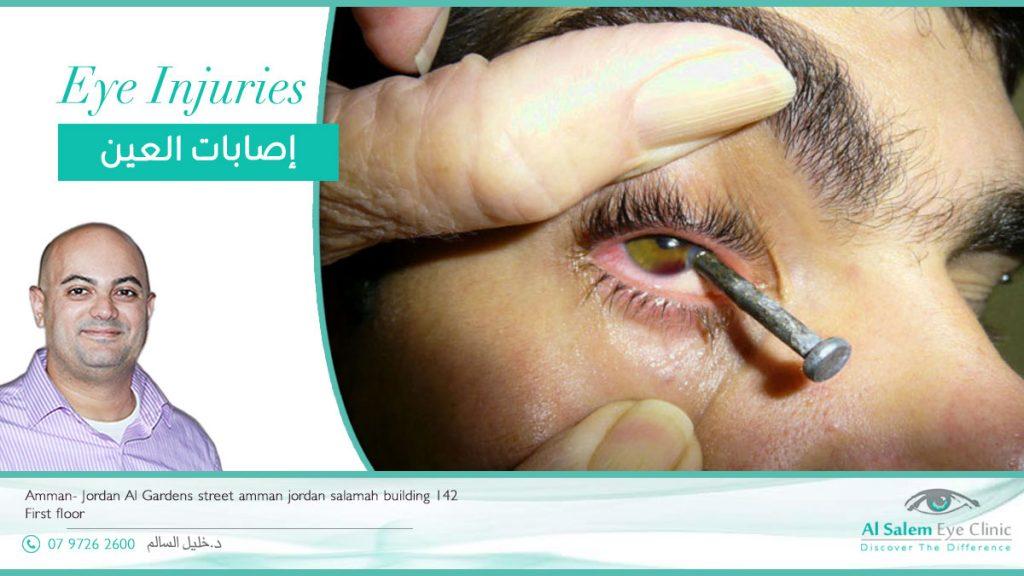 إصابة العين بضربه رضيه أو بأداة حادة أو بمادة كيميائية مثل مادة الكلور هو أمر يحدث في البيت. إصابات العين عند الأطفال علاج إصابة العين