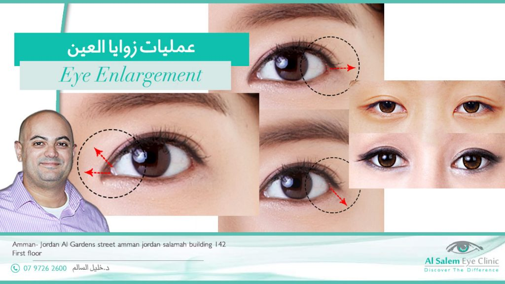 عملية زوايا العين أو سحب العين ، عمليات توسيع العين و عمليات سحب العيون أو ما يعرف بعمليات توسيع حدقة العين و تكلفة مثل هذه العمليات
