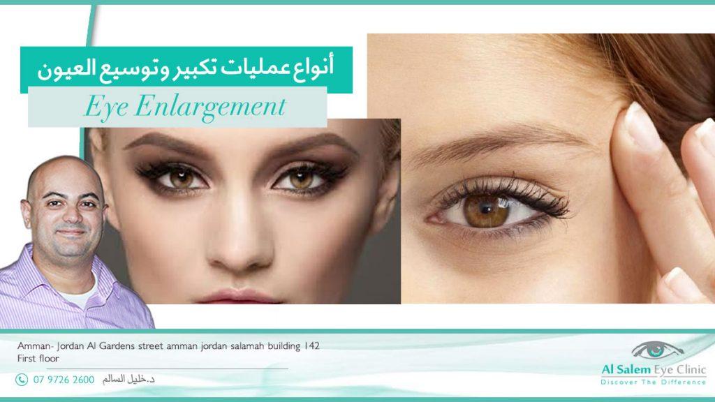 أنواع عمليات تكبير وتوسيع العيون