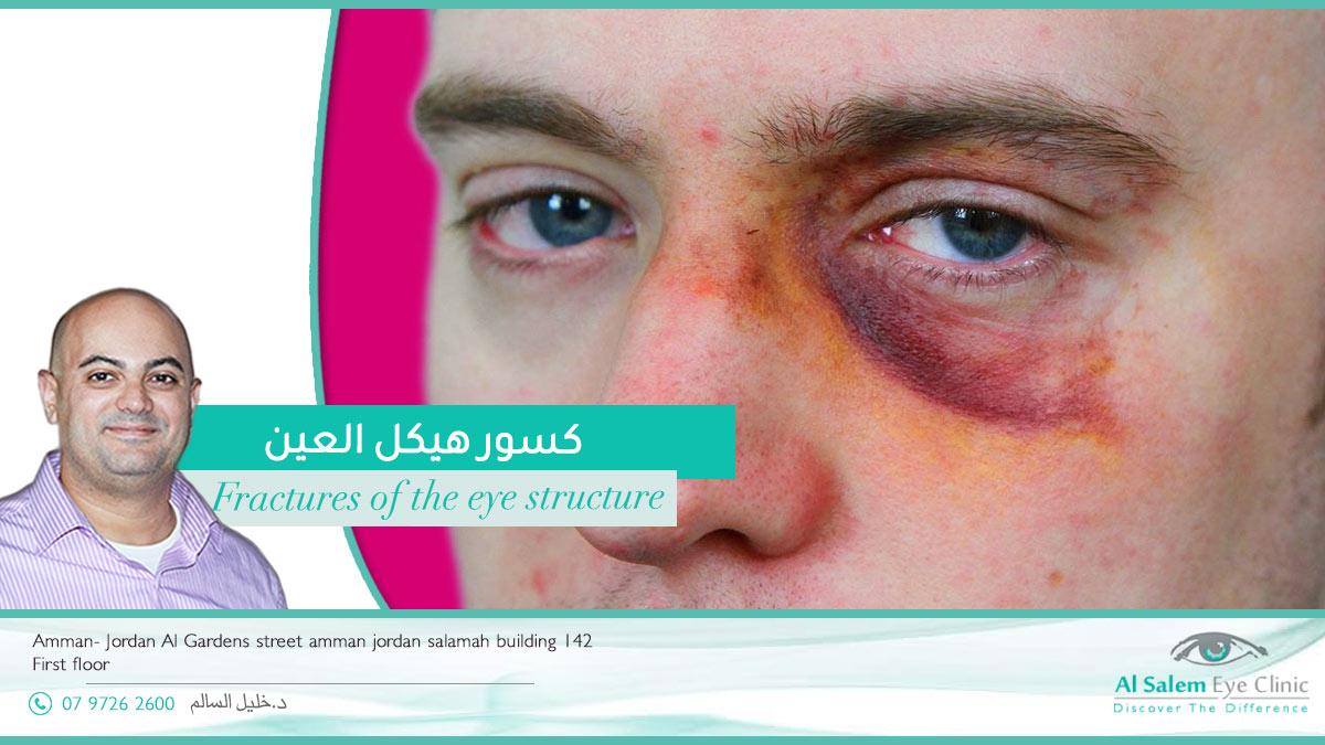 ورم في محجر العين : هي كتلة لحمية حميدة أو خبيثة . ما هي أعراض أورام محجر العين ؟ ما الإرشادات و النصائح قبل عملية إزالة ورم من محجر العين؟