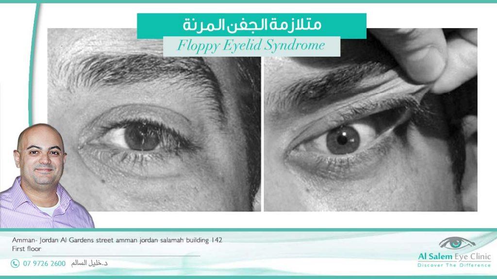متلازمة العين المرنة