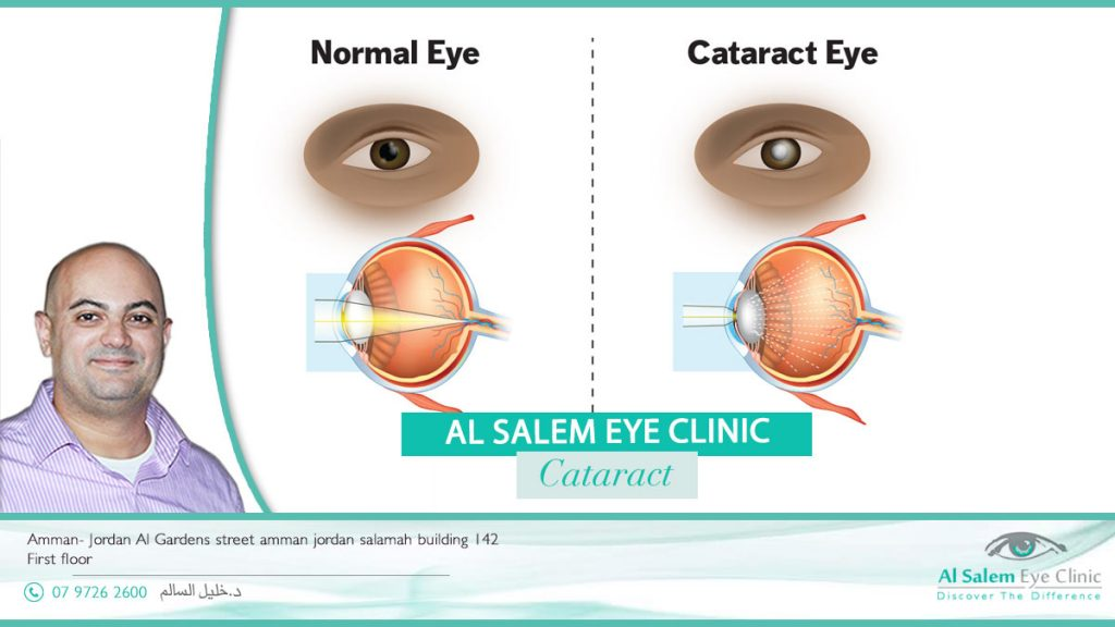 Treat your eyes to today with the best surgeon in Jordan Dr. Khalil Al-Salem