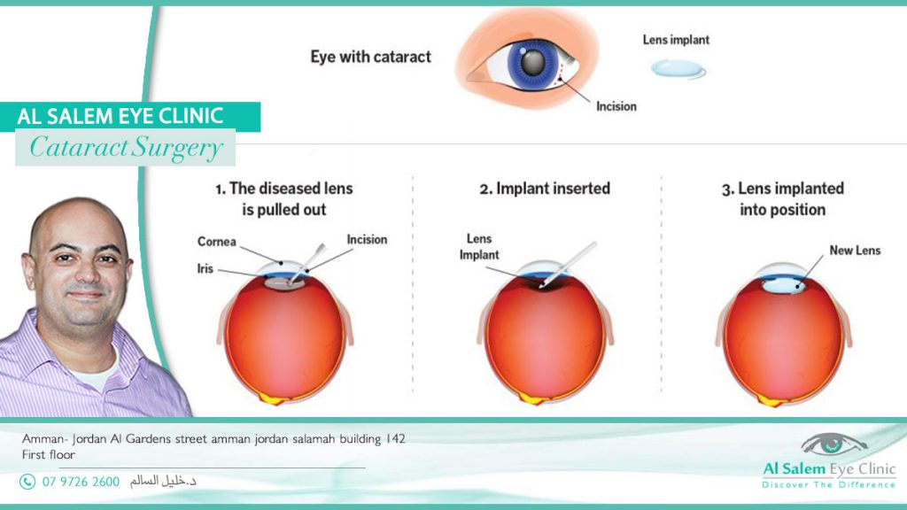 cataract surgery in Jordan, all about cataract surgery, complications of cataract surgery, cataract surgery types, recovery tips after cataract surgery