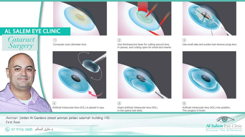 types of lenses implanted for cataract surgery in Jordan