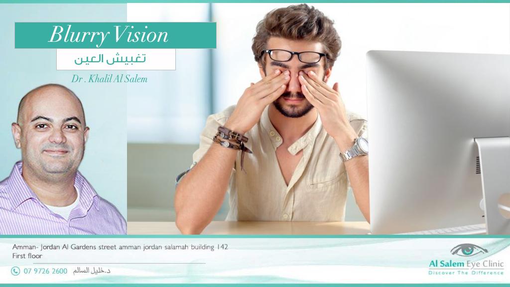 ضبابية الرؤية عند فتح كلتا العينين و لاكنها لا تعاني من غباش أو زغللة أو تشويش في العين حينما تغلق عين واحده. علاج غباش العين غير معروف