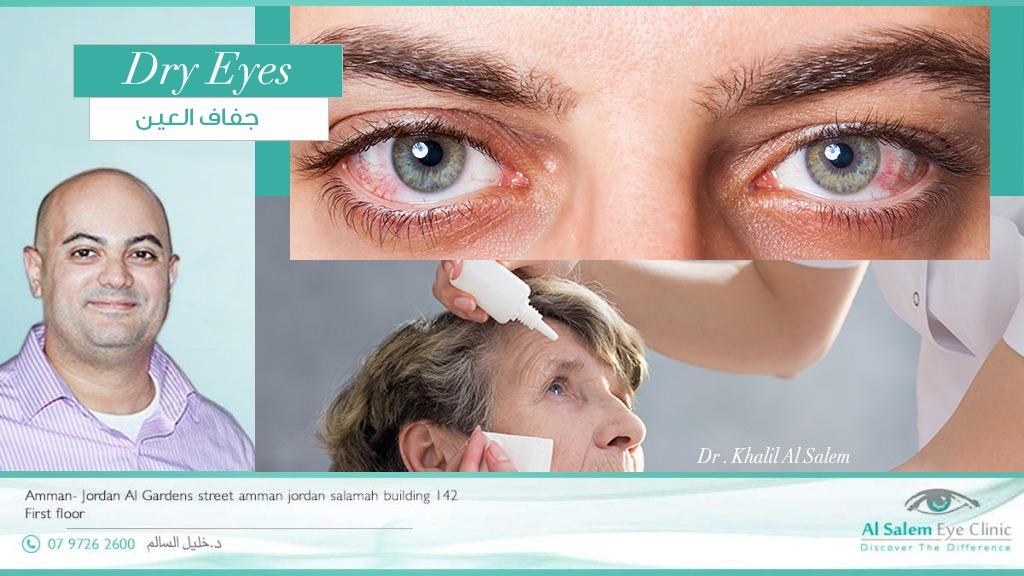 إلتهاب الجفون ، مرض يصيب غدد الجفون التي تفرز الطبقة الدهنية أو الطبقة الزيتية لغشاء الدمع علي العين ، علاج إلتهاب الجفون و جفاف العين