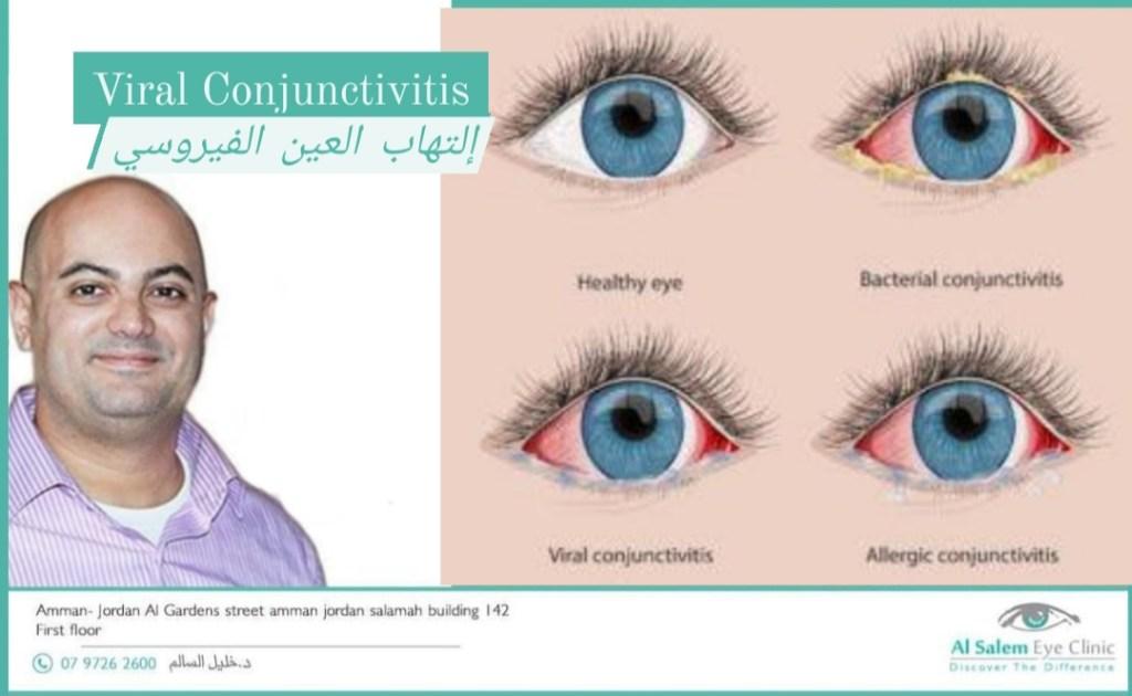 التهاب ملتحمة العين الفيروسي . في هذا المنشور سنتعرض إلي أعراض الإلتهاب الفيرسي و كيفية علاج التهاب العين بسبب فيروس ادينو و كوكساكي