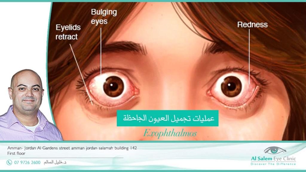 signs of thyroid eye disease present, eye redness, bulging of the eye, eyelid retraction, eye dryness