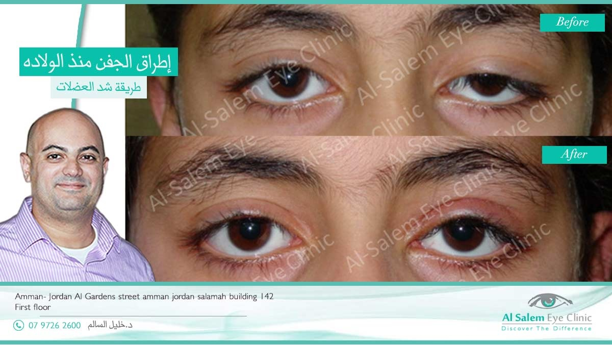 Ptosis or upper eyelid drooping , Droopy eyelids. Herein, we will discuss the types of Droopy lids and how we treat Ptosis