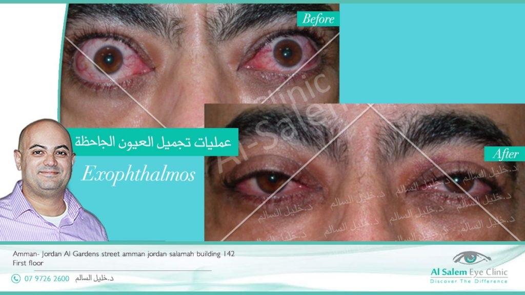 thyroid eye disease and Graves disease. Eye signs of graves disease