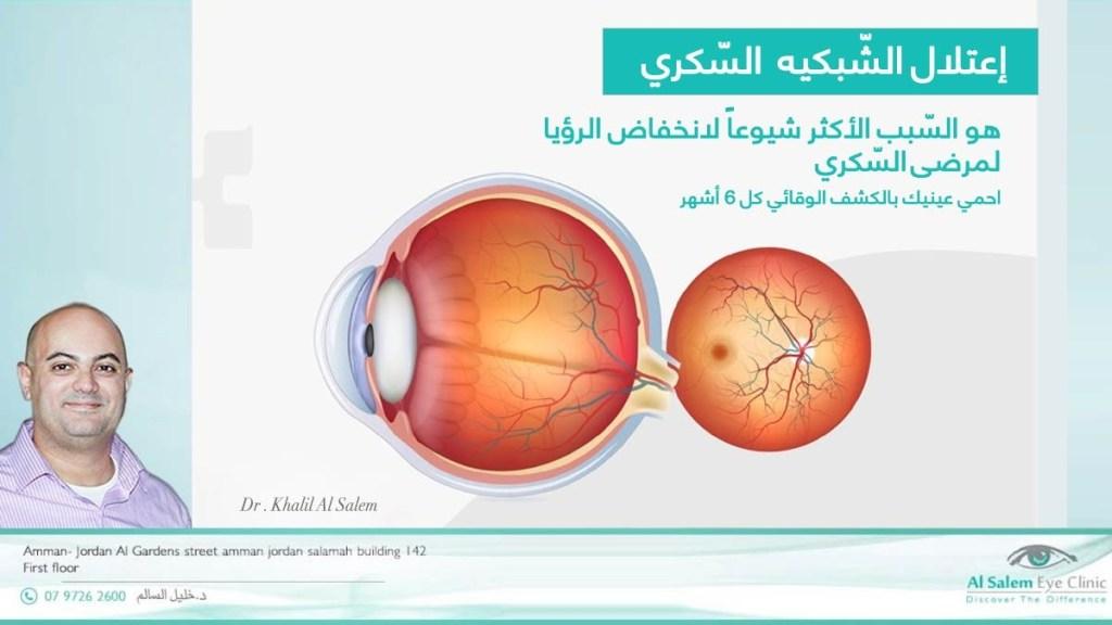 علاج عمى السكري ، علاج جديد بالحقن لعمى السكري