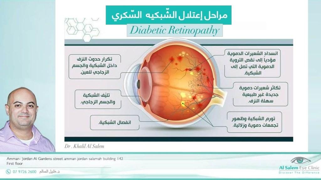 أعتلال الشبكي السكري ، أسباب فقدان البصر بسبب السكري و كيفة علاج نزيف الشبكية بسبب مرض السكري، الحقن في علاج إعتلال الشبكية السكري