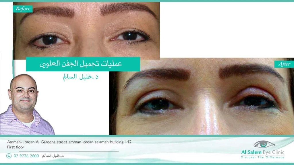 Blepharoplasty is a eyelid surgery designed to repair baggy eyes, the surgeon might decide to fix droopy eyelids at the same time of surgery
