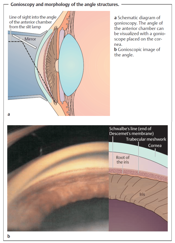 gonioscopy for glaucoma