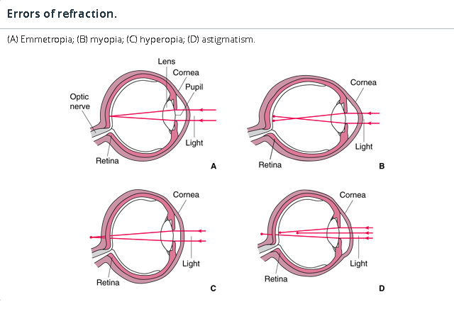 Refractive errors lecture : Myopia, Hyperopia , astigmatism, and treatment regimes like glasses, contact lenses and refractive surgery.