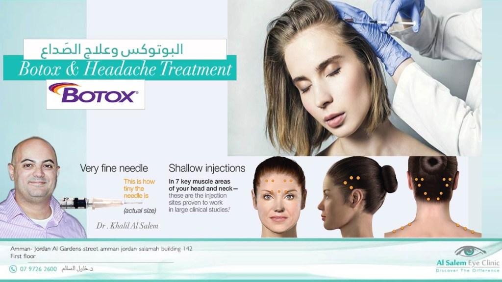 علاج البوتكس  أو حقن البوتكس للصداع النصفي و الشقيقة أو الصداع الذي ينتج من الإجهاد في آخر النهار . علاج البوتكس للشقيقة
