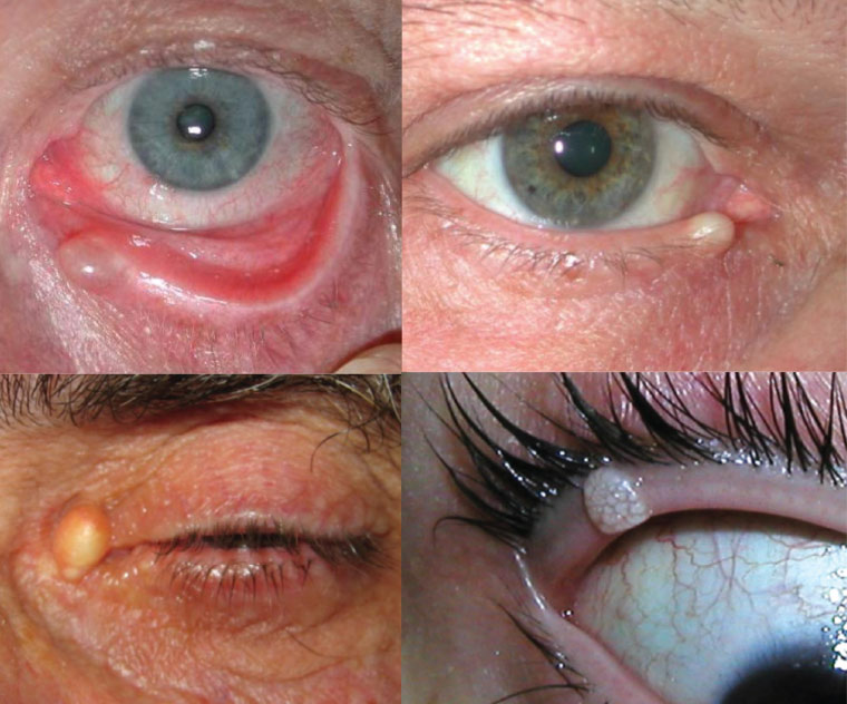 Common benign eyelid lesions: Translucent cyst of Moll (upper left), cyst of Zeis filled with sebaceous material (upper right), epidermal inclusion cyst filled with keratin (lower left) and molluscum contagiosum (lower right)