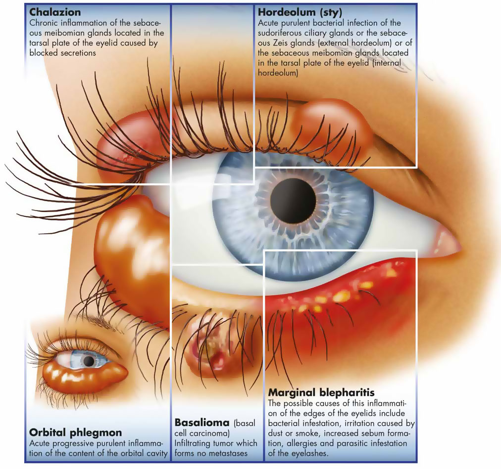 Benign eyelid lesions and malignant tumors arising from skin like, basal cell carcinoma, malignant melanoma, squamous cell carcinoma.