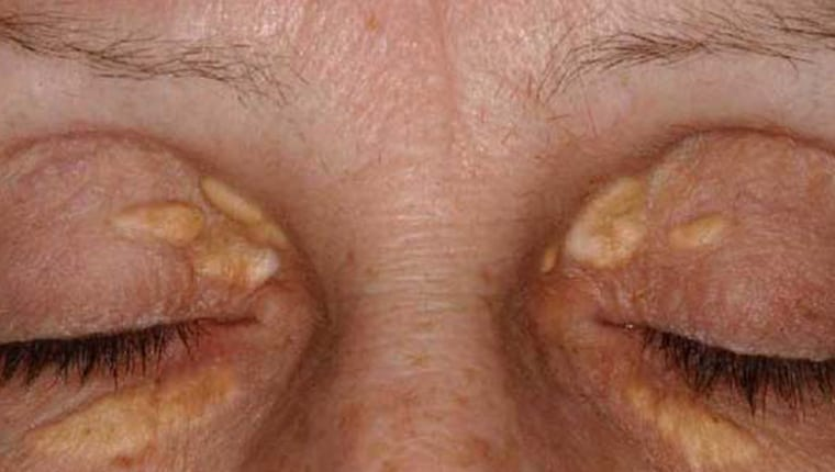 Xanthelasma are lesions in the superficial dermis and subdermal tissue containing lipid-laden macrophages.