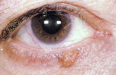 Seborrheic keratosis is the most common benign eyelid lesion