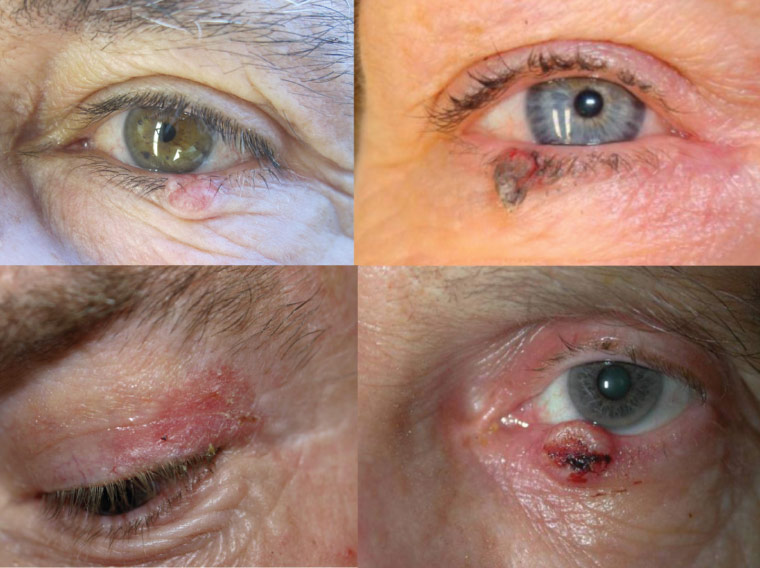 Malignant eyelid tumours: A basal cell carcinoma presenting as an isolated nodule with associated telangiectasia and loss of lashes (upper left), keratoacanthoma (upper right), actinic keratosis (lower left) and invasive squamous cell carcinoma with central ulceration (lower right)