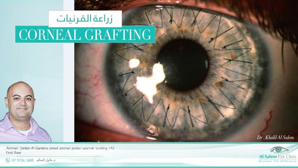 و التي يقوم بها طبيب العيون (أخصائي قرنية) . سنجاوب عن أسئلة تتعلق في زراعه القرنية ، علاج القرنية المخروطية ، إعتام القرنية و نجاح العملية