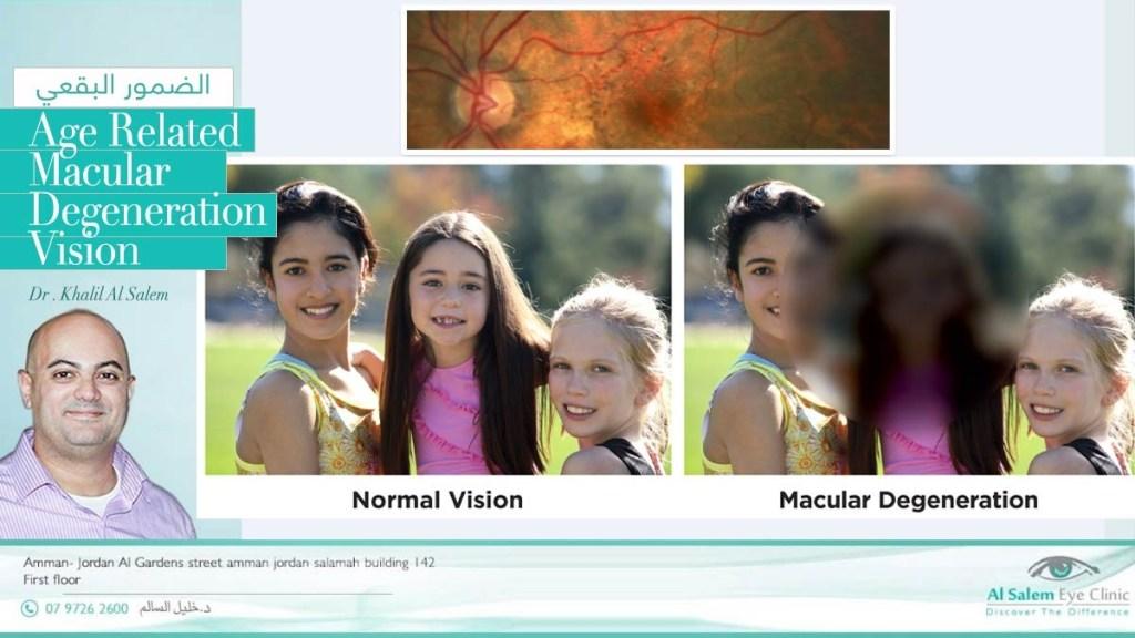 ضمور الشبكية الشيخوخي أو التنكس البقعي ، و يعرف أيضا بإعتلال الشبكية الشيخوخي. حقن داخل العين