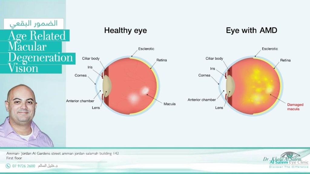 ضمور الشبكية الشيخوخي أو التنكس البقعي ، و يعرف أيضا بإعتلال الشبكية الشيخوخي. إعتلال اللطخة الصفراء . مرض نادر في الأردن