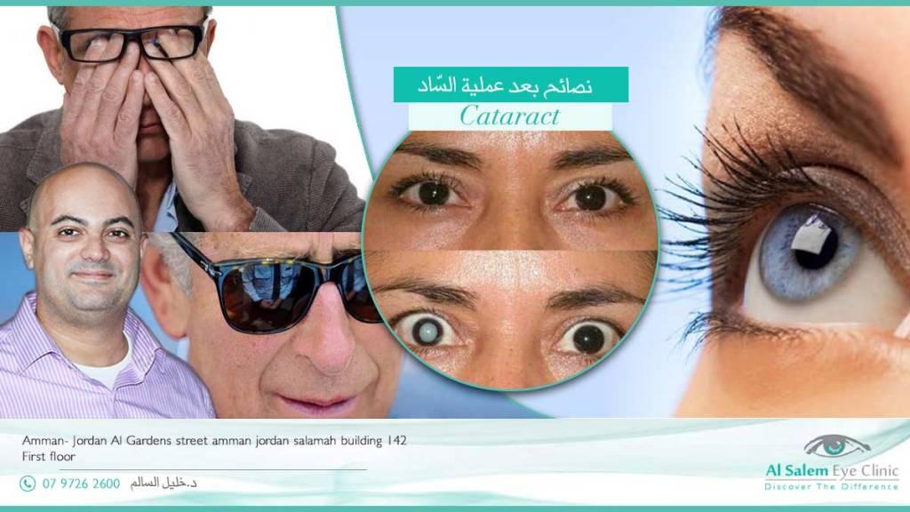 التعليمات بعد عملية المياه البيضاء، نسبة نجاح عملية و الدموع بعد عملية المياه البيضاء ارتفاع ضغط العين بعد عملية الرؤية ضبابية بعد عملية