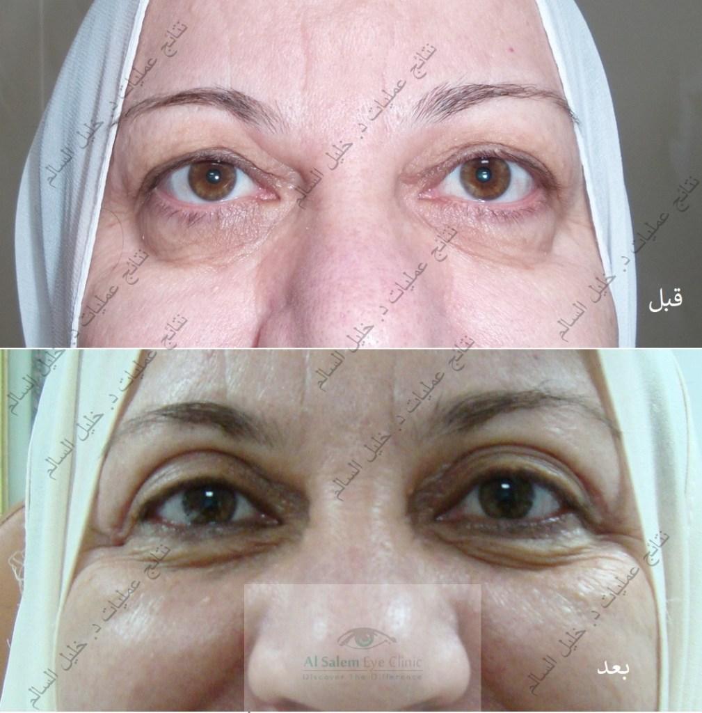 نتائج عمليات تجميل العيون ، نتائج تجميل العيونقبل وبعد ، تجميل العيونالصغيرة، أو عمليات تجميل العيونالجاحظة، عمليات تجميل العيونالغائرة