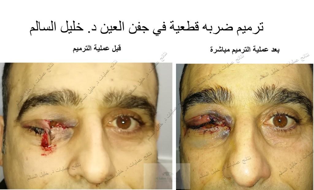 نتائج-عمليات-تجميل-العين