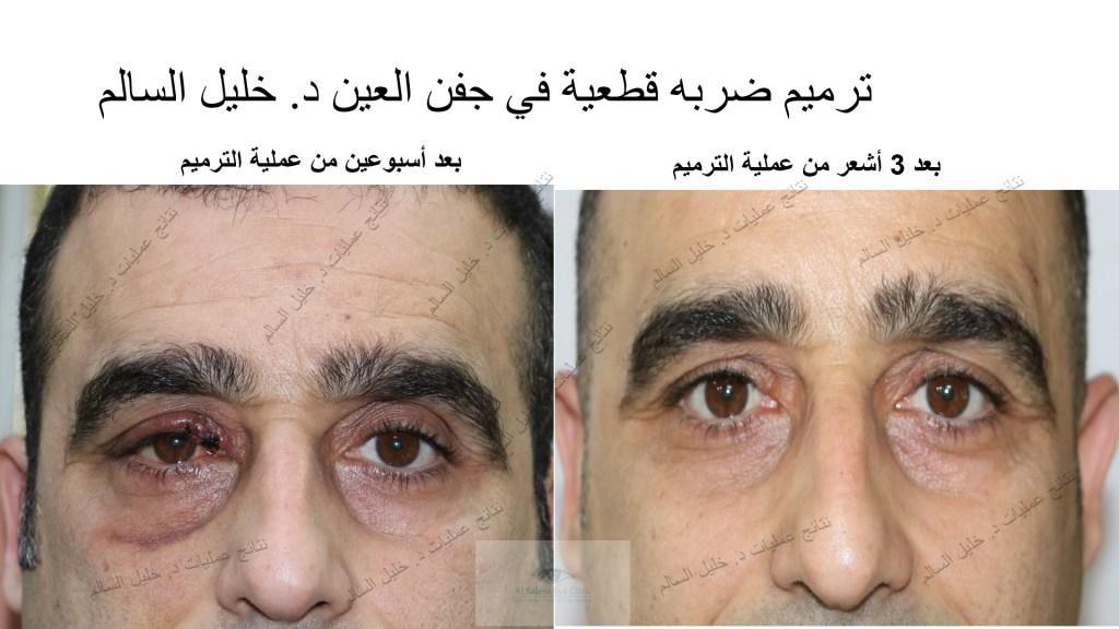 نفس الشخص السابق بعد إنتظار عملية ترميم ضربه علي العين و إحداث جرح قطعي بالجفن ، نتائج تجميل الجفن